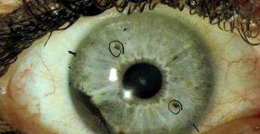 El extraño cáncer de ojo que los expertos no logran explicar