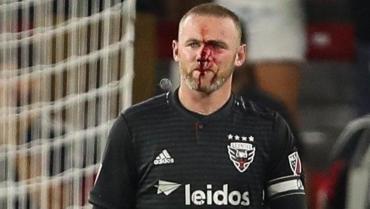 Rooney marcó un tanto en la MLS, pero terminó lleno de sangre por un terrible codazo