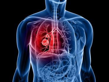 El cáncer de pulmón calificado como el más mortífero