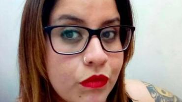 """Mujer denunció que fue atacada a cuchillazos por su ex suegra: """"Me cortó toda, me desfiguró"""""""