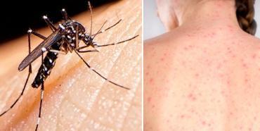 Confirman muerte de un hombre por dengue y una mujer por sarampión en hospitales porteños