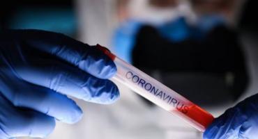 Coronavirus: Argentina liderará ensayo que busca probar eficacia de fármaco antiinflamatorio en infectados