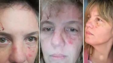 Coronavirus: vecino golpeó a enfermera cuando volvía de trabajar y le tiró desinfectante en la cara