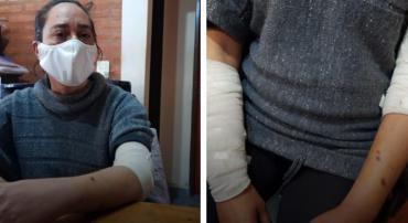 """Feroz ataque de cinco perros pitbull y rottweiler a mujer: """"El casco de la moto le salvó la vida"""""""
