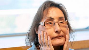Murió Connie Culp, la mujer que recibió primer trasplante de cara en los Estados Unidos