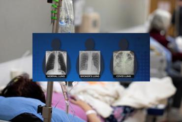FOTO IMPACTANTE: muestran que los pulmones después del coronavirus se ven peor que el de los de fumadores