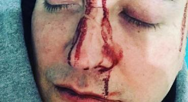 Desfiguraron a Leo García y denunció que le pegaron
