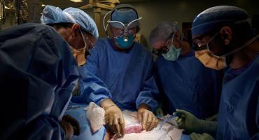 ¿Cómo salió  el primer trasplante de un riñón de cerdo a un cuerpo humano?